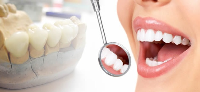 Dental Prosthetics: Artificial Substitutes That Offer Natural-Looking Replacement for Natural Teeth